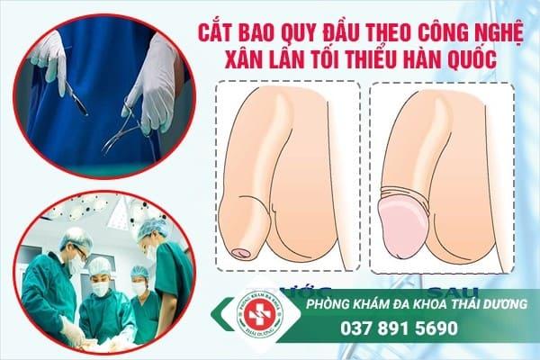 chi phí chữa trị bệnh hẹp bao quy đầu ở Đồng Nai