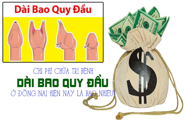 Chi phí chữa trị bệnh dài bao quy đầu ở Đồng Nai hiện nay là bao nhiêu?