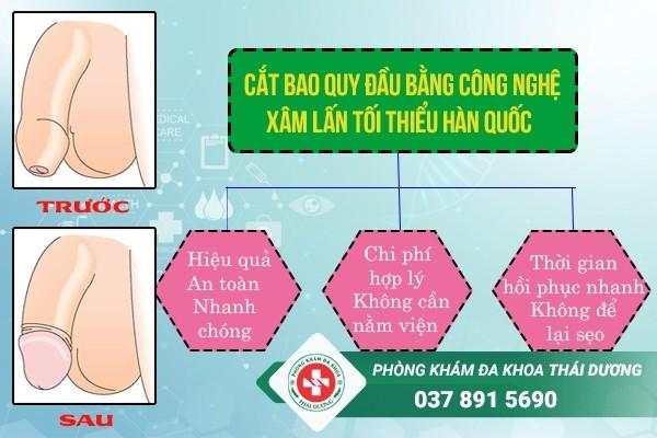 chi phí cắt bao quy đầu ở Biên Hòa