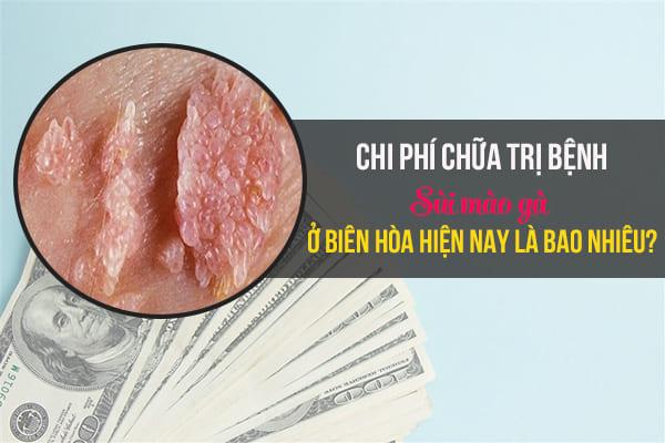 chi phí chữa trị bệnh sùi mào gà ở Biên Hòa