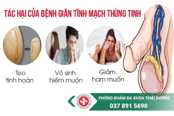 chi phí chữa trị bệnh giãn tĩnh mạch thừng tinh ở Biên Hòa - Đồng Nai 1