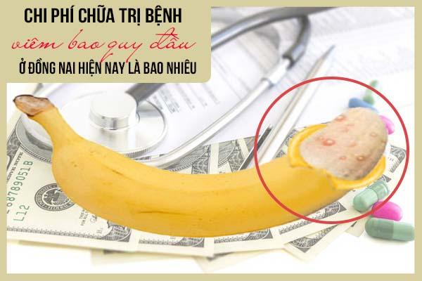Chi phí chữa trị bệnh viêm bao quy đầu ở Đồng Nai hiện nay là bao nhiêu?