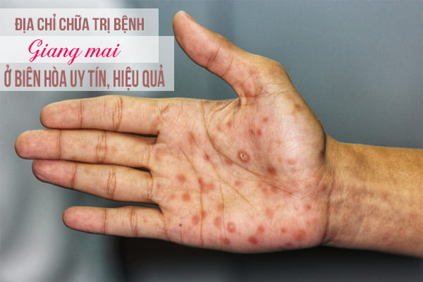 Địa chỉ chữa trị bệnh giang mai ở Biên Hòa uy tín, hiệu quả