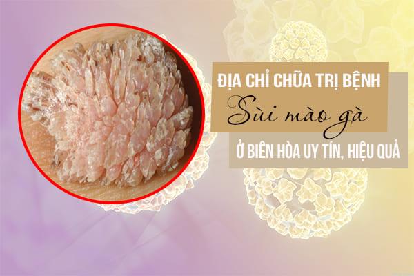 Địa chỉ chữa trị bệnh sùi mào gà ở Biên Hòa uy tín, hiệu quả