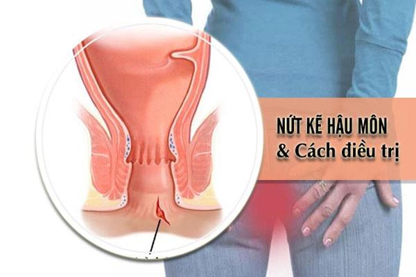 Nứt kẽ hậu môn có thể gây ra nhiều biến chứng nguy hiểm nếu không điều trị sớm