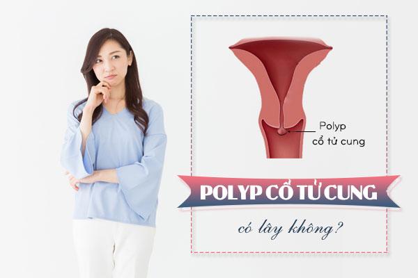 Bệnh polyp cổ tử cung có lây không