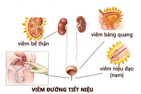 Viêm đường tiểu là một trong những bệnh lý thường gặp