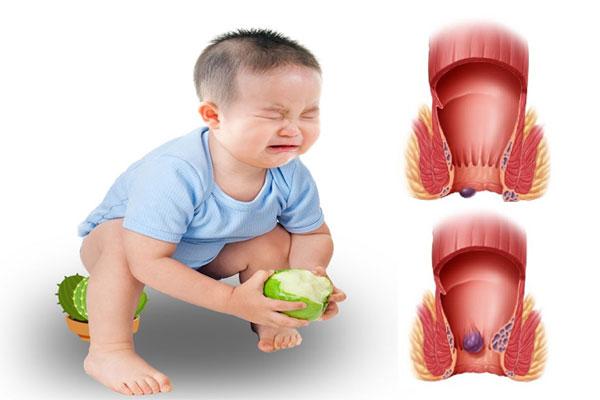 Trẻ đi ngoài có chất nhầy và máu có thể do mắc bệnh trĩ