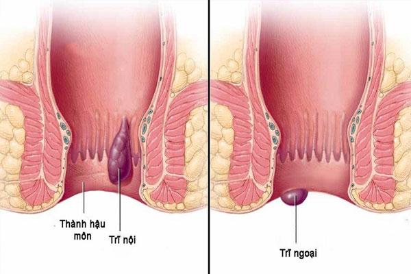 Hình ảnh minh họa bệnh trĩ ngoại