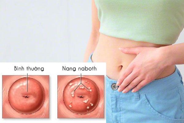 Nang naboth cổ tử cung là một căn bệnh phụ khoa thường gặp ở chị em phụ nữ