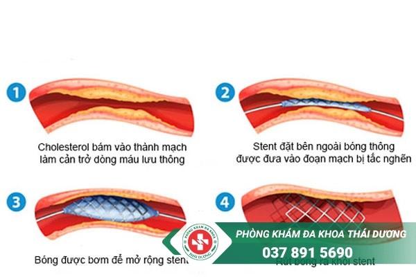 Bổ sung thực phẩm tốt cho tim mạch để giúp người bệnh nhanh hồi phục