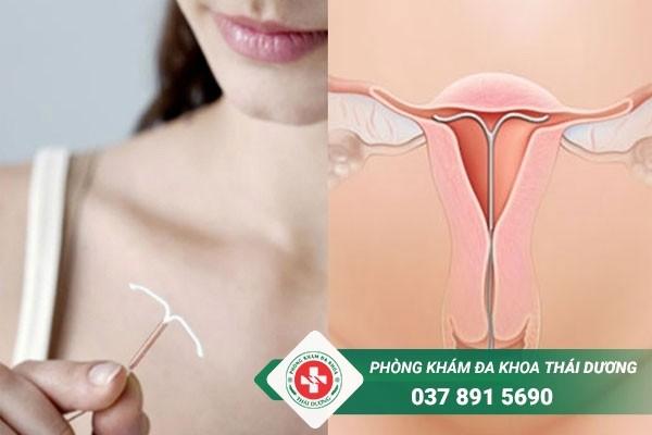 Đặt vòng tránh thai có đau không