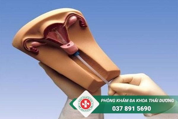 Đặt vòng tránh thai ở đâu an toàn nhất