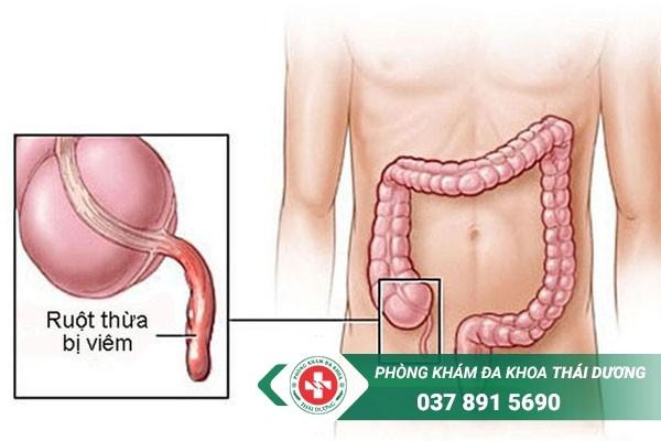 Đau ruột thừa thường đau ở đâu
