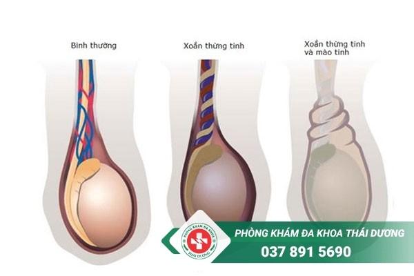 Xoắn tinh hoàn gây đau tinh hoàn trái và bụng dưới