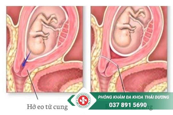 Khâu eo tử cung là thủ thuật được chỉ định cho những trường hợp bị hở eo cổ tử cung