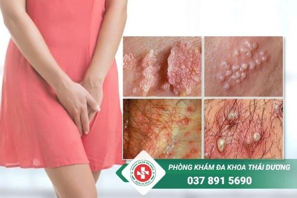 Mụn mọc ở vùng kín phụ nữ có thể là dấu hiệu cảnh báo nhiều bệnh nguy hiểm