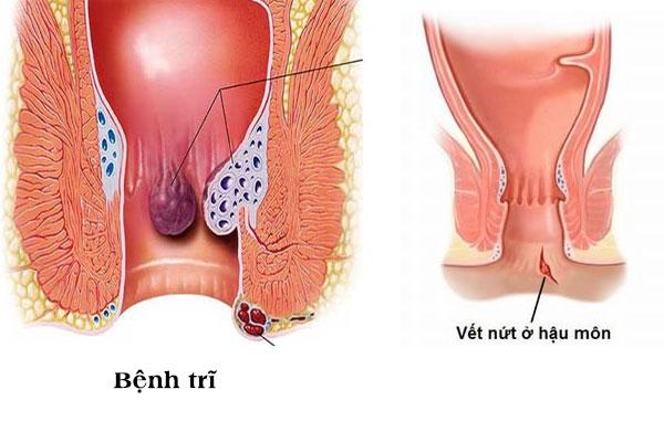 Bệnh trĩ và nứt kẽ hậu môn là guyên nhân đi cầu ra máu ở nam giới điển hình