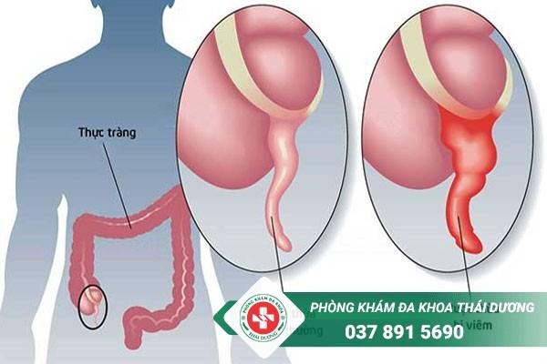 Những triệu chứng sau khi mổ ruột thừa là gì
