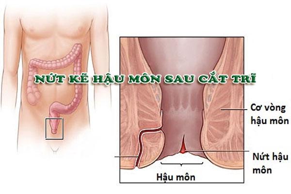 Điều trị nứt kẽ hậu môn sau cắt trĩ hiệu quả bằng kỹ thuật HCPT