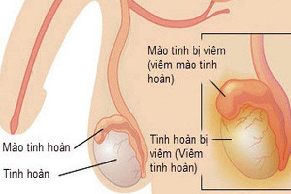 Phương pháp chữa viêm mào tinh hoàn tại Đa Khoa Thái Dương