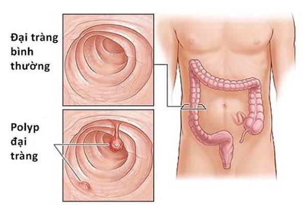 Polyp đại trực tràng cũng là nguyên nhân đi cầu ra máu ở nam giới