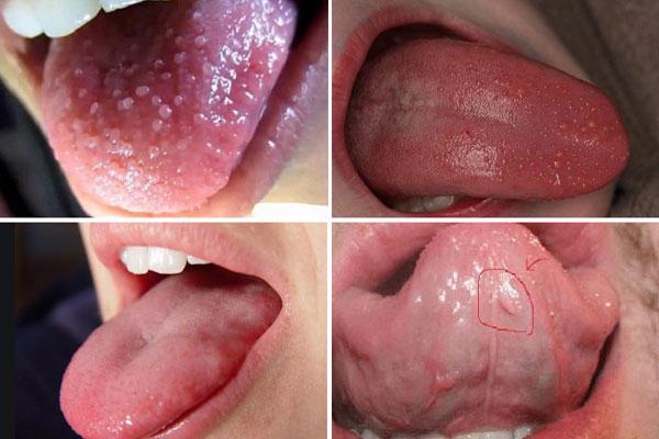 Sùi mào gà ở lưỡi giai đoạn đầu cần chữa không