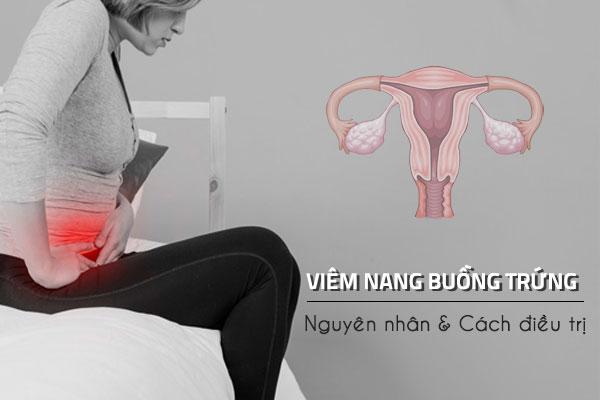 Bệnh viêm nang buồng trứng là gì? Nguyên nhân và cách điều trị