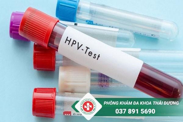 Xét nghiệm máu mang lại hiệu quả chính xác nhất hiện nay