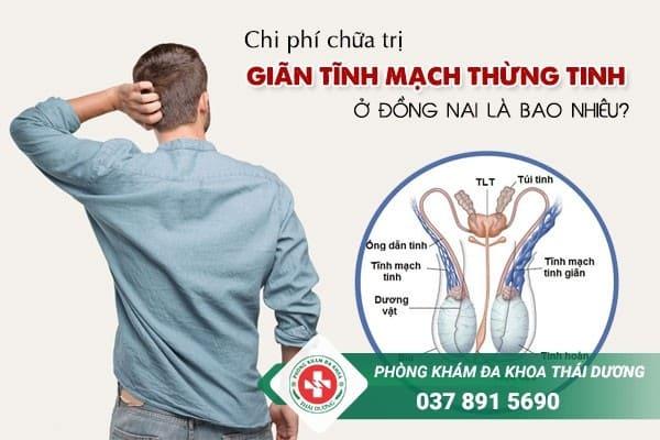 Chi phí chữa trị bệnh giãn tĩnh mạch thừng tinh ở Đồng Nai là bao nhiêu?