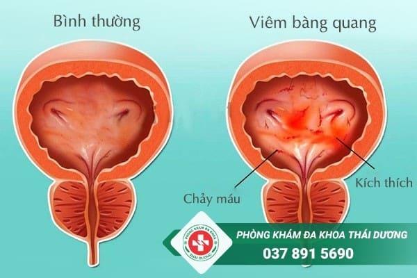 Viêm bàng quang là bệnh lý phổ biến tại đường tiết niệu