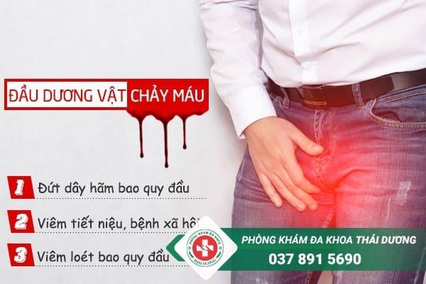 Dương vật bị chảy máu có thể là dấu hiệu cảnh báo nam giới mắc bệnh lý nguy hiểm