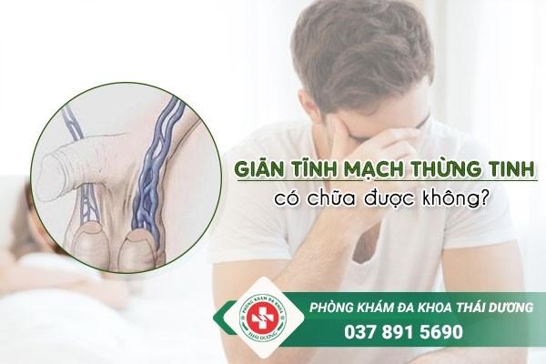 Giãn tĩnh mạch thừng tinh có chữa khỏi được không?