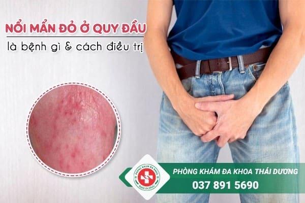 Nổi mẩn đỏ ở quy đầu là bệnh gì và cách điều trị