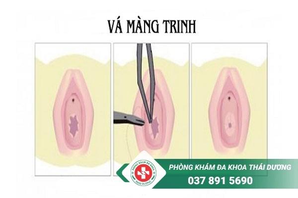 Vá màng trinh là thủ thuật nhằm tái tạo lại màng trinh mới cho chị em có màng trinh bị rách