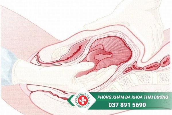 Rách cổ tử cung là tình trạng thường gặp sau khi sinh ở nhiều chị em