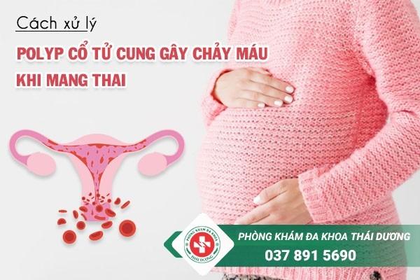 Cách xử lý khi polyp cổ tử cung gây chảy máu khi mang thai