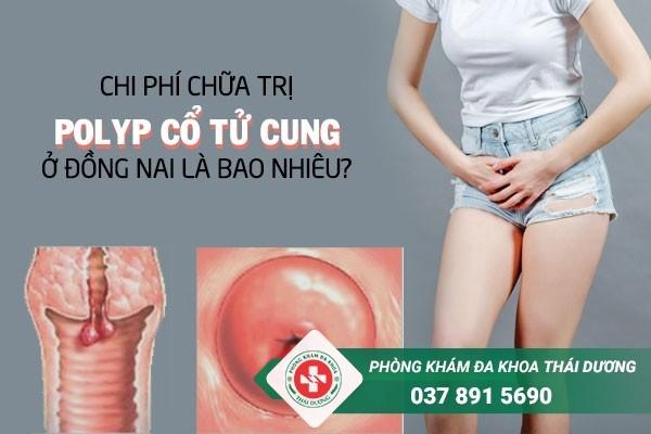 Chi phí chữa trị bệnh polyp cổ tử cung ở Đồng Nai bao nhiêu là hợp lý