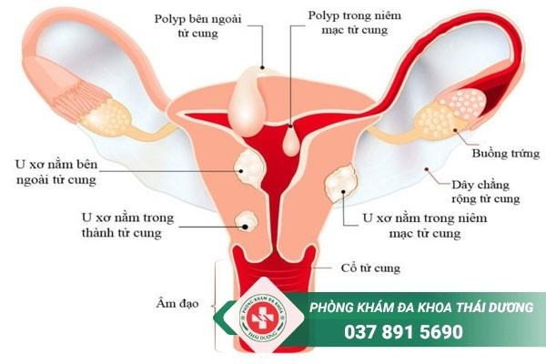 U xơ tử cung là gì?