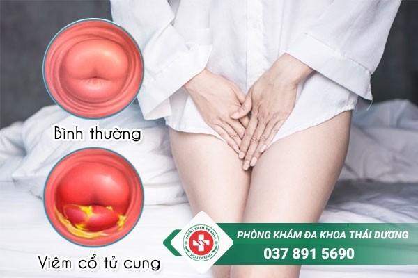 Viêm cổ tử cung không chữa sớm sẽ gây ra nhiều biến chứng nguy hiểm cho chị em