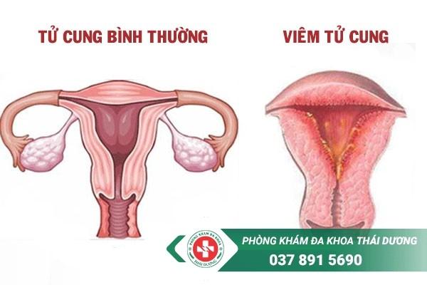 Hình ảnh viêm tử cung