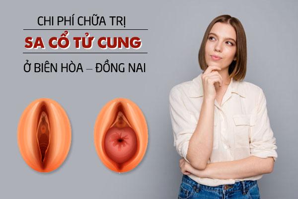 Chi phí chữa trị sa cổ tử cung ở Biên Hoà - Đồng Nai
