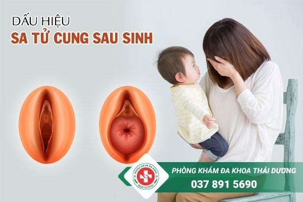 Dấu hiệu của bệnh sa tử cung sau sinh