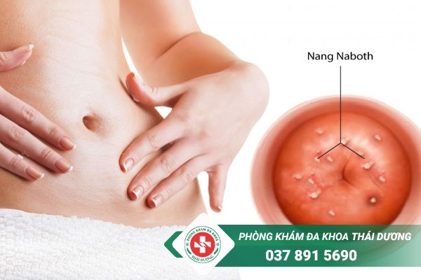 Bệnh nang naboth cần được phát hiện và điều trị kịp thời