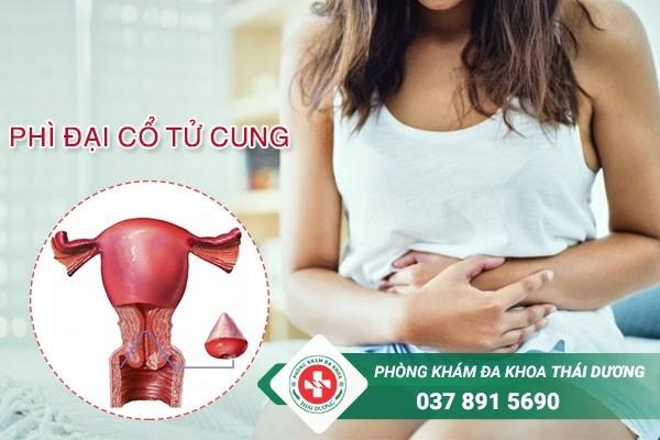 Phì đại cổ tử cung là một trong những bệnh phụ khoa nguy hiểm ở nữ giới