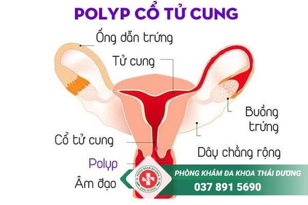 Hình ảnh polyp cổ tử cung