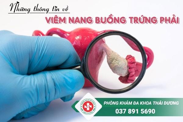 Những thông tin về viêm nang buồng trứng phải