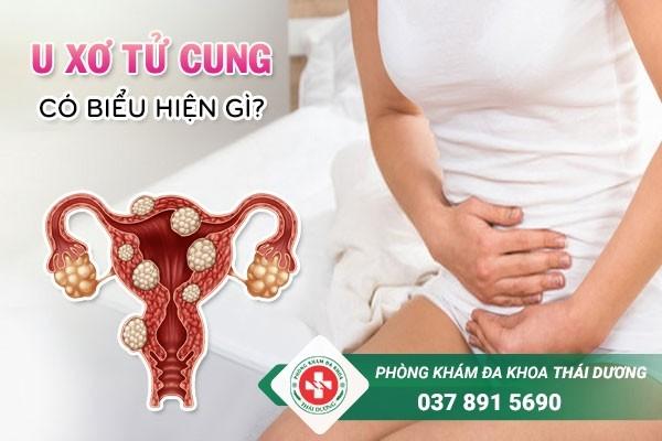 Bệnh u xơ tử cung có biểu hiện gì