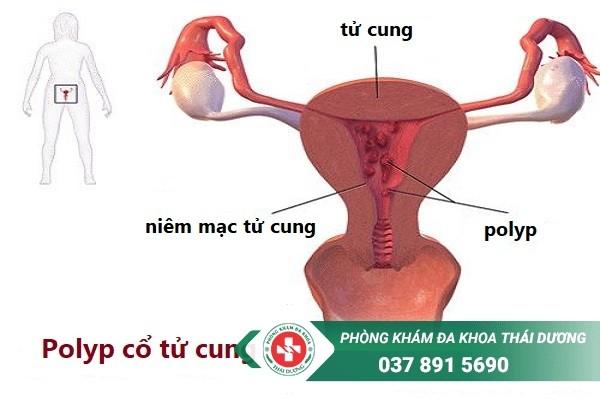 Chi phí chữa trị bệnh polyp cổ tử cung ở Biên Hòa giá bao nhiêu