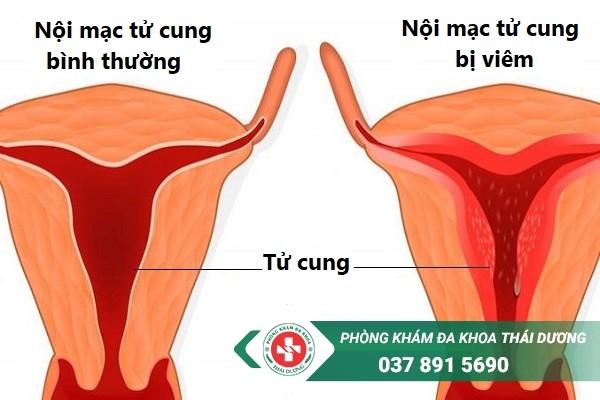 Sơ lược về căn bệnh viêm nội mạc tử cung